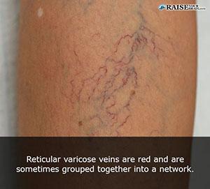 veins_15